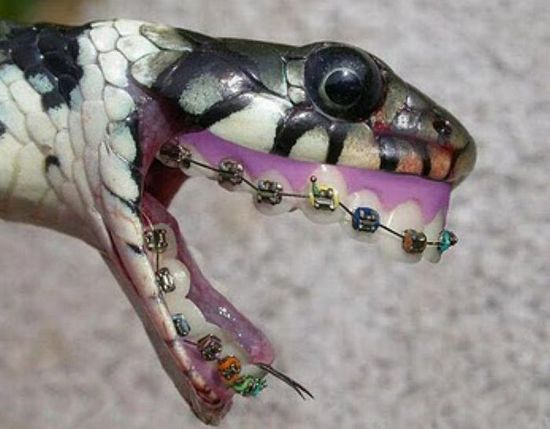 Joyas en los dientes / Grills teeth